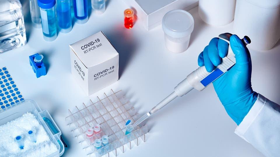 الجزائر تشرع في انتاج كاشف لفيروس كورونا في 15 دقيقة